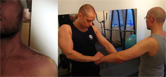 Shoulder Rehabilitation Personal Training